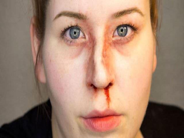 как восстановить нос после перелома