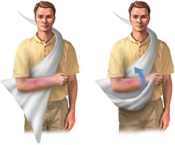 Привычный вывих плечевого сустава