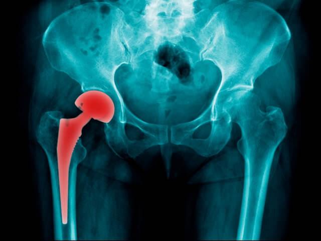 Травма бедренной кости