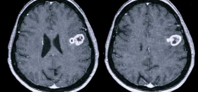 Глиобластома головного мозга человека