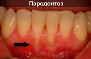 Почему происходит оголение шейки зуба