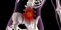 Как лечить коксартроз тазобедренного сустава в домашних условиях