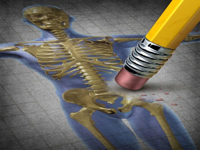 Скелет со сломанным бедром