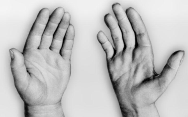 Мышечная дистрофия у мужчин