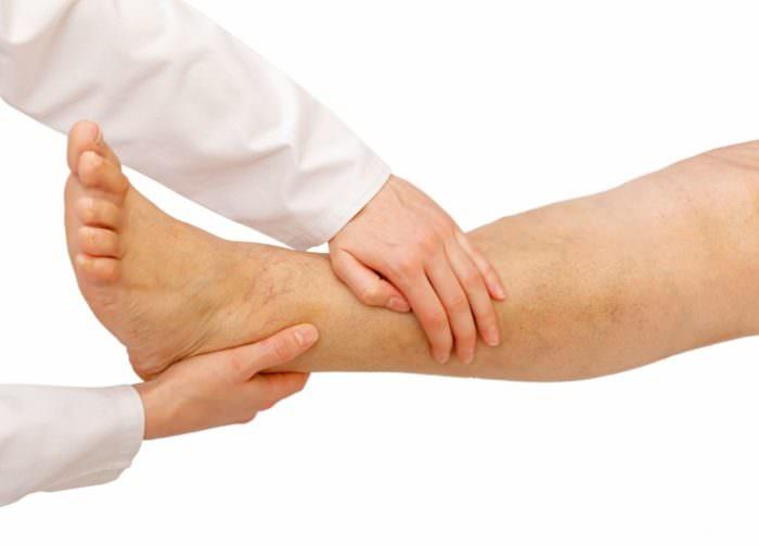 Отечность мягких тканей ниже колена