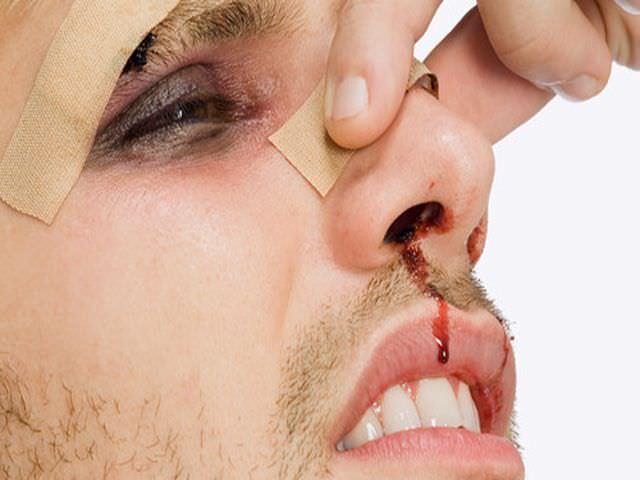последствия после перелома носовой перегородки