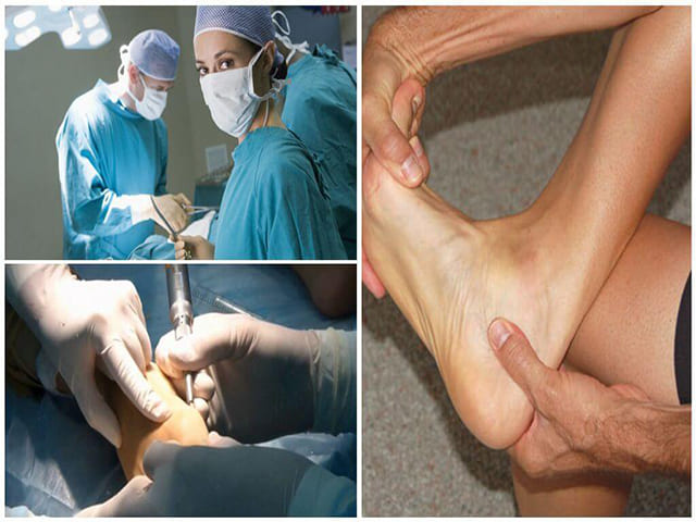 Лечение шпоры на стопе ноги