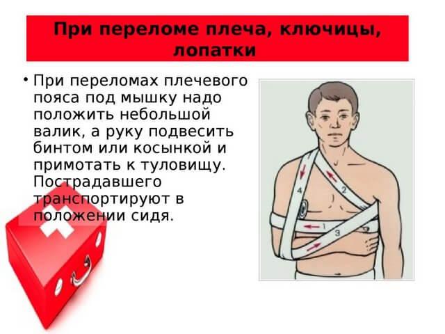 Схема оказания первой помощи при повреждении плеча