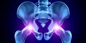magnitno-rezonansnaya-tomografiya-tazobedrennyh-sustavov