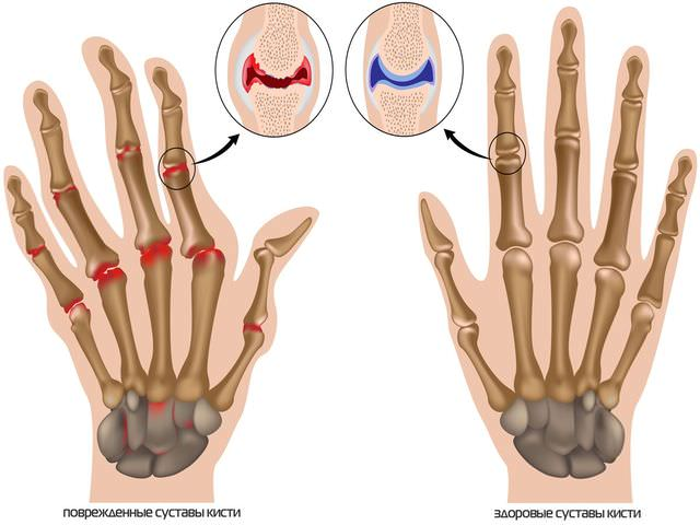 остеоартроз пальцев рук