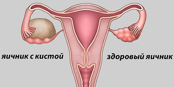 Что такое киста яичника