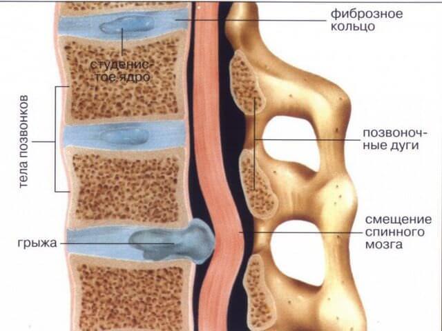 Смещение спинного мозга