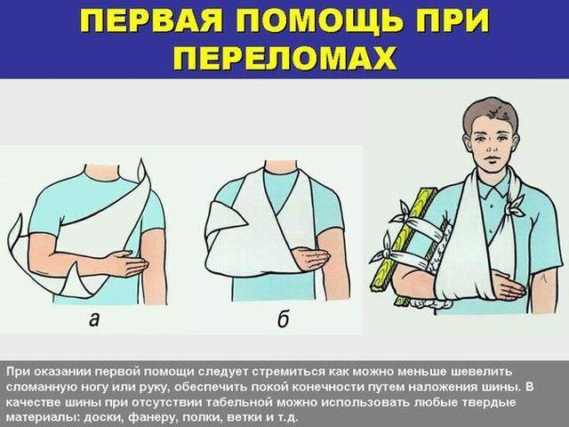 Комплекс экстренных медицинских мероприятий при переломе руки