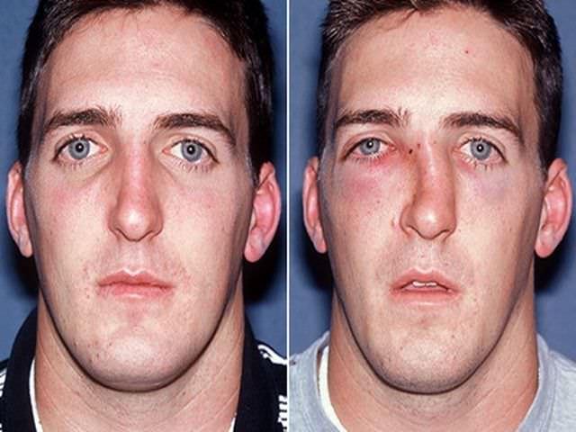 перелом перегородки носа