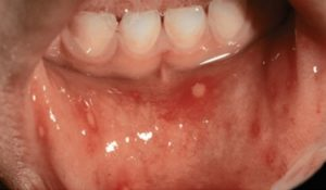 Основные симптомы и лечение энтеровирусного везикулярного стоматита