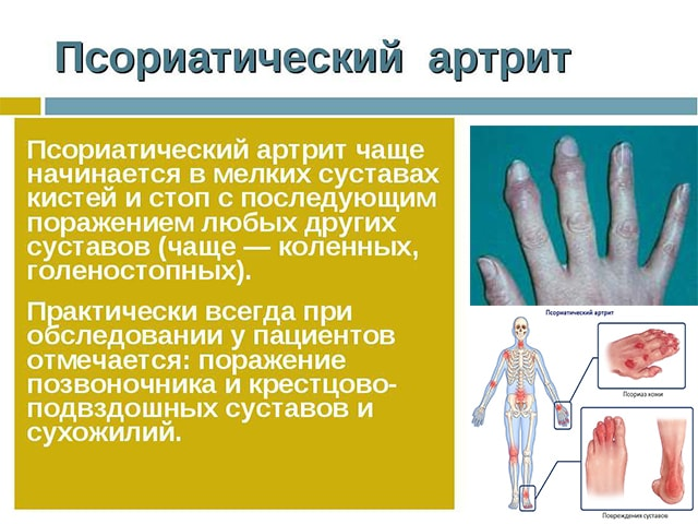 Заболевание кистей