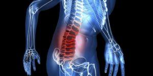 Лечение и реабилитация после перелома позвоночника