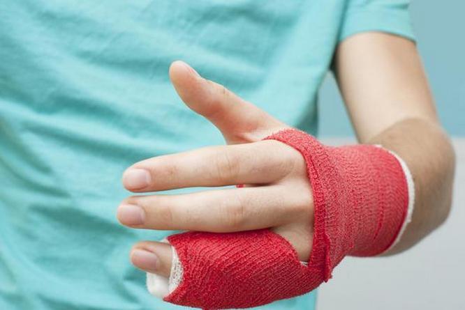 Вывих пальца руки — симптомы и лечение