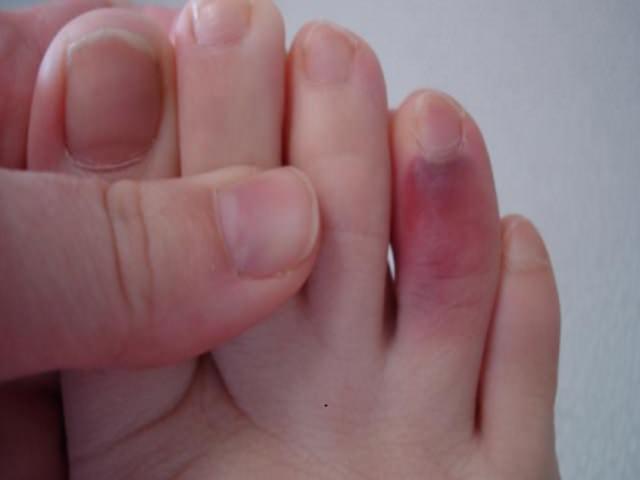 Травма и гематома