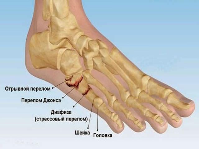 Виды переломов костей ноги