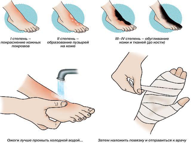 Повреждение тканей рук и ног