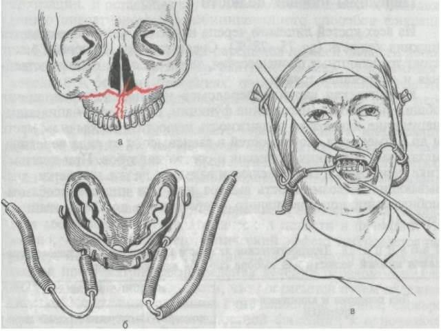 Перелом верхней части челюсти