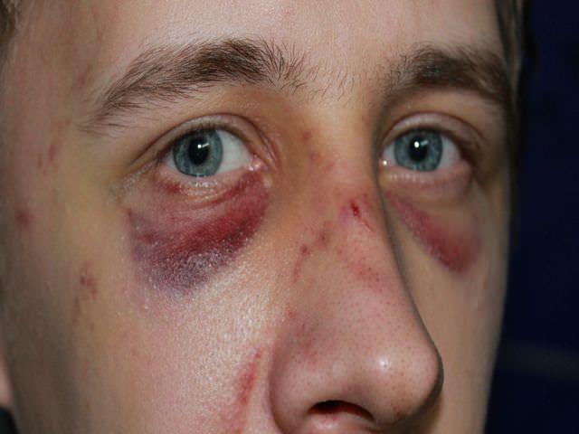 разрушение перегородки носа