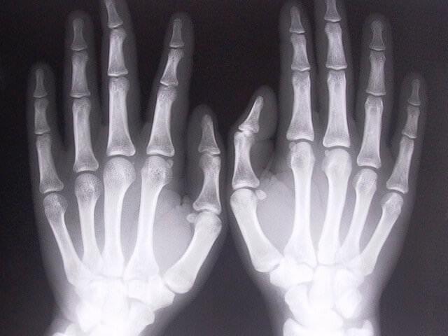 Рентгеноскопический снимок