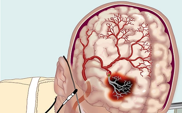 Церебральное нарушения в кровотоке