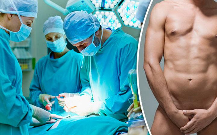 Увеличение члена хирургическим путем