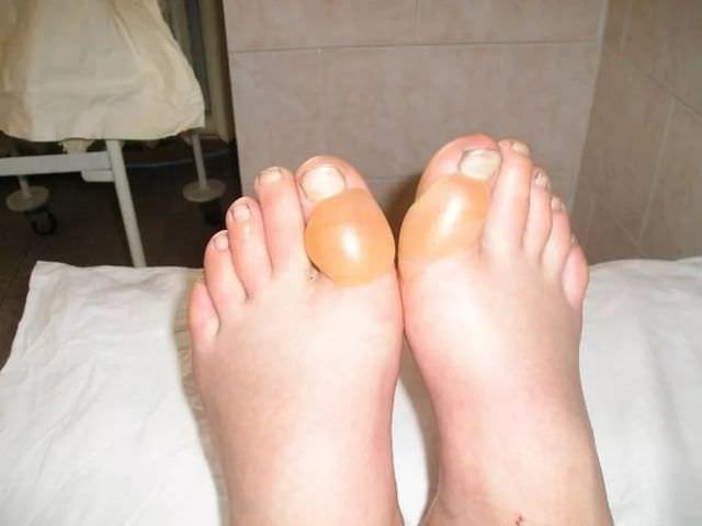 Волдыри на пальцах ног
