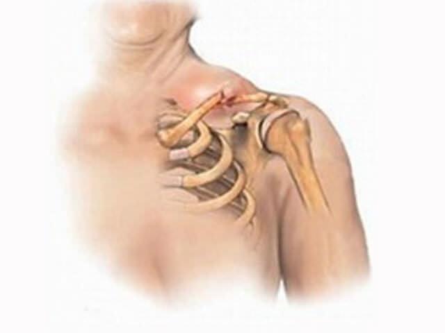 Травма кости плеча