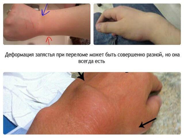 Травмы рук