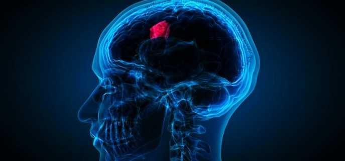 Жизнь после удаления опухоли головного мозга