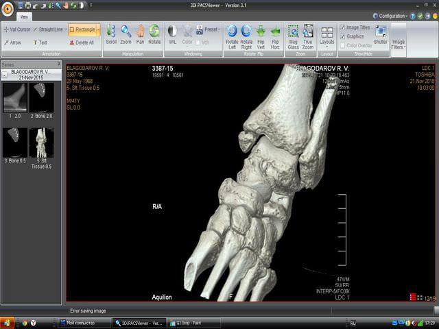 Повреждение лодыжки в компьютерной графике