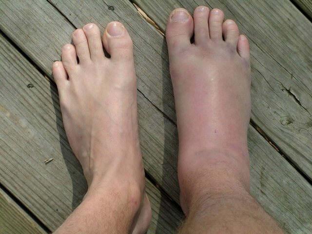 Отекшая нога