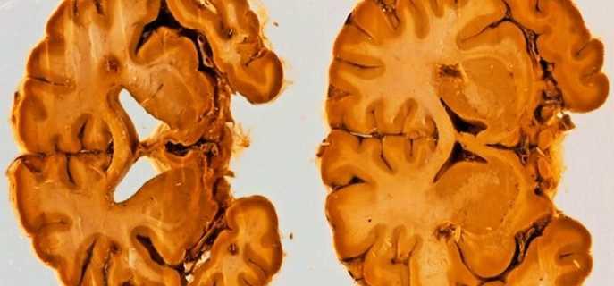 Причины атрофии головного мозга и их характеристики