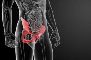 Перелом седалищной кости таза