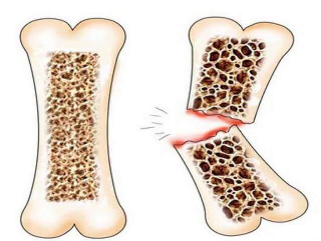Больная и здоровая кость