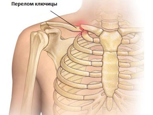 Схема серьезной травмы