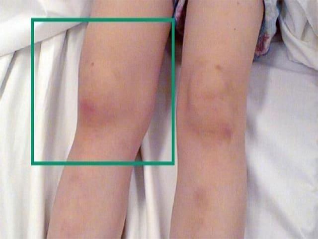 Что такое ревматоидный артрит коленного сустава?