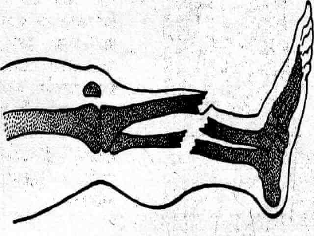 Открытый перелом костей