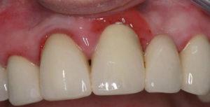 вокруг зуба красная десна