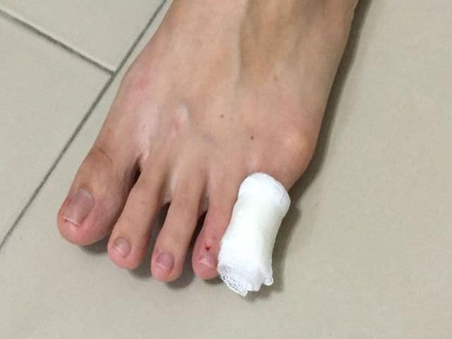 Как можно быстро восстановить палец после травмы