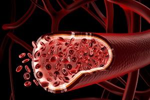 Чистые кровеносные сосуды