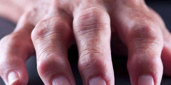Пальцы, подверженные артриту
