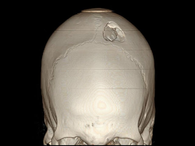 Повреждение костей головы