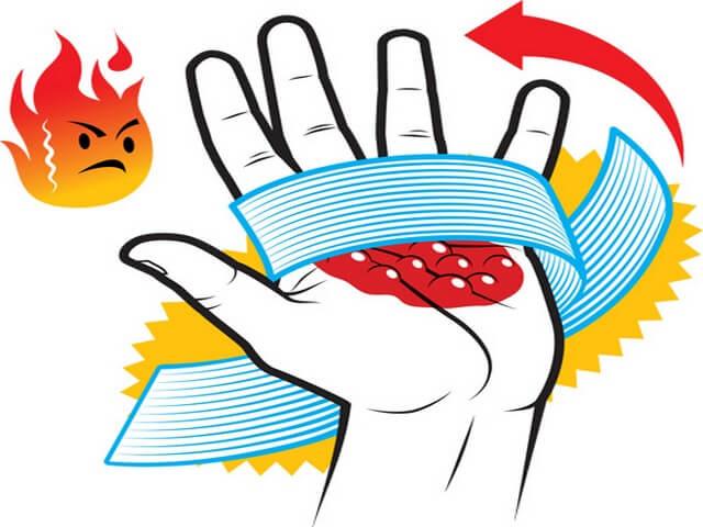 Рука с термическим повреждением кожи