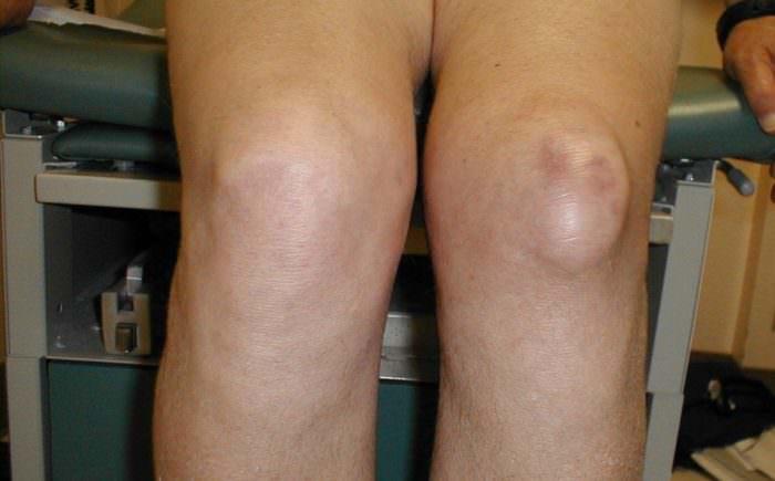 Бурсит на левом коленном суставе.