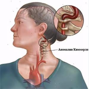 Аномалия киммерле лечение и симптомы болезни